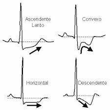 cardio1